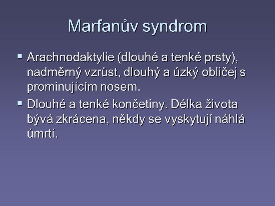 Marfanův syndrom Arachnodaktylie (dlouhé a tenké prsty), nadměrný vzrůst, dlouhý a úzký obličej s prominujícím nosem.