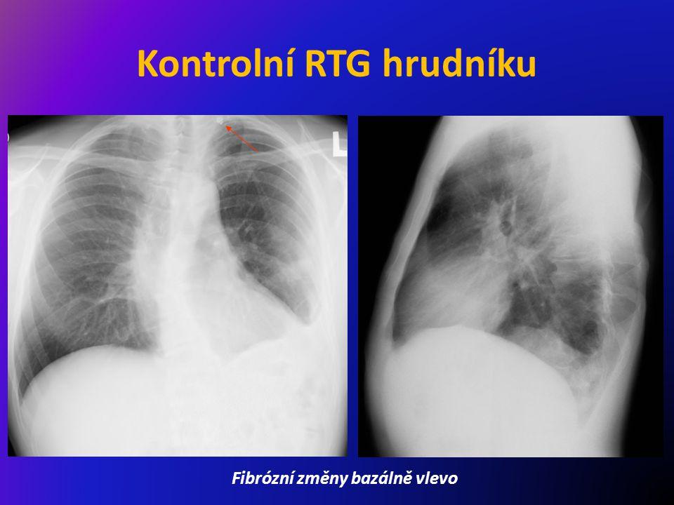 Kontrolní RTG hrudníku