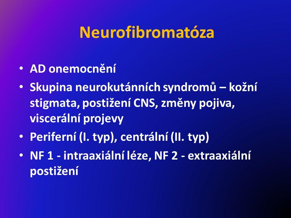 Neurofibromatóza AD onemocnění