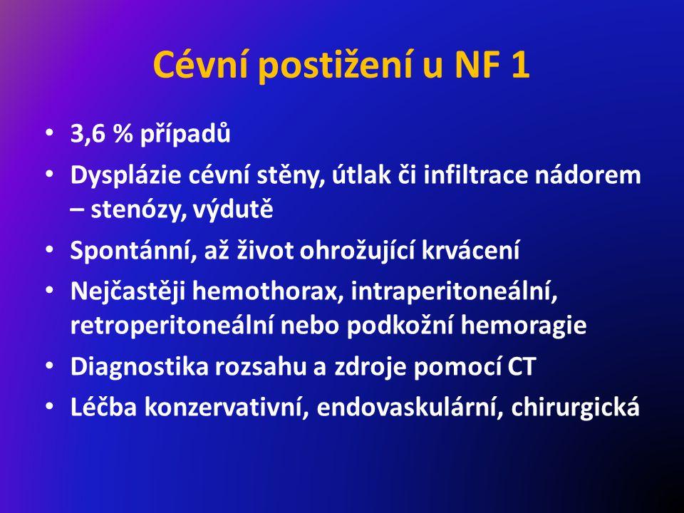 Cévní postižení u NF 1 3,6 % případů