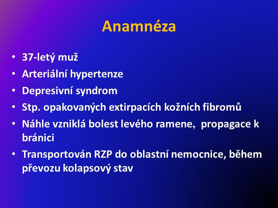 Anamnéza 37-letý muž Arteriální hypertenze Depresivní syndrom