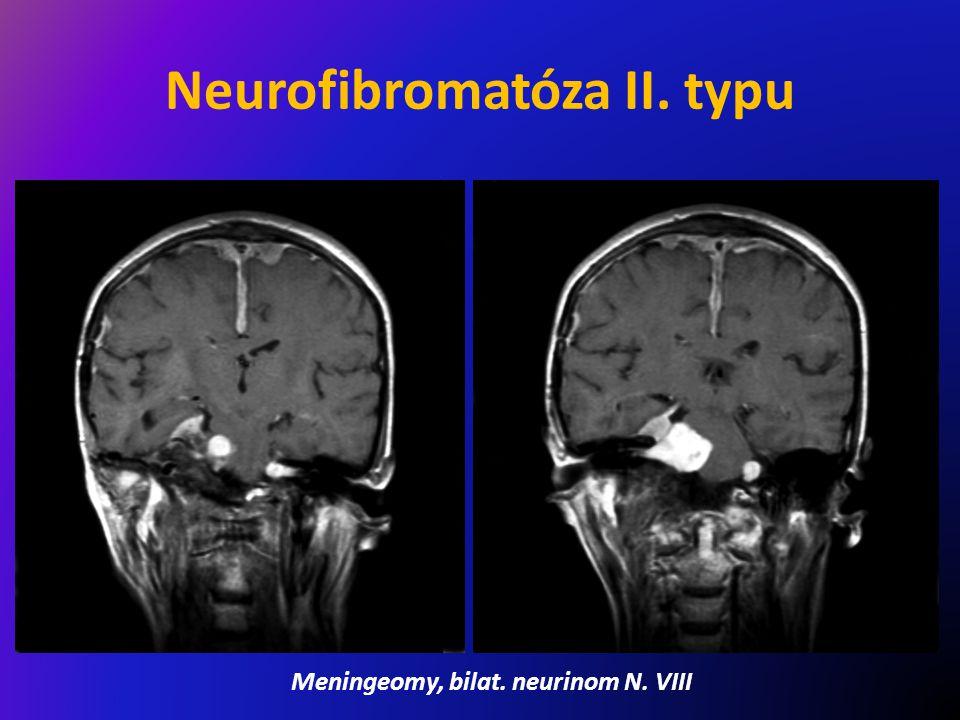Neurofibromatóza II. typu
