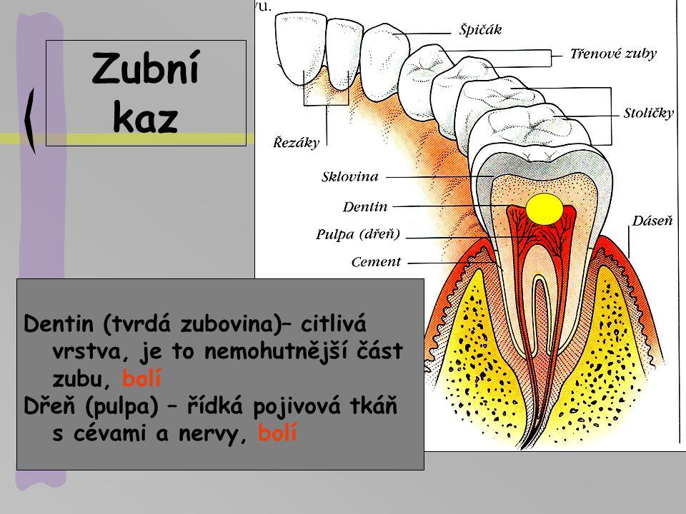 Zubní kaz Dentin (tvrdá zubovina)– citlivá