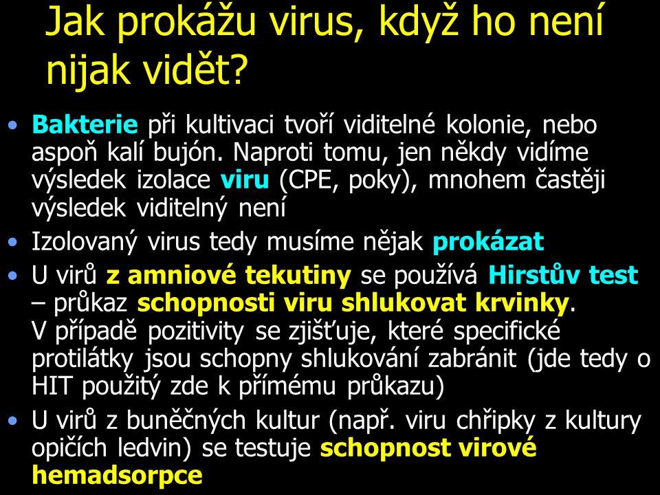 Jak prokážu virus, když ho není nijak vidět