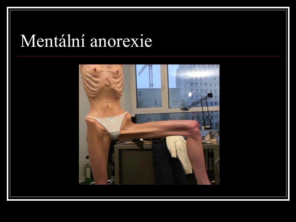 Mentální anorexie
