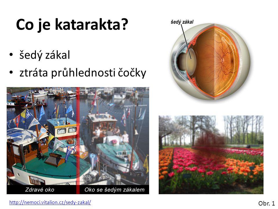 Co je katarakta šedý zákal ztráta průhlednosti čočky Obr. 1
