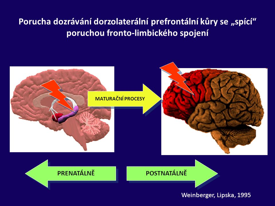 """Porucha dozrávání dorzolaterální prefrontální kůry se """"spící poruchou fronto-limbického spojení"""