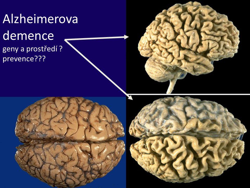 Alzheimerova demence geny a prostředí prevence