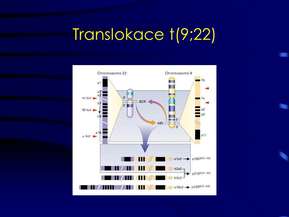 Translokace t(9;22)