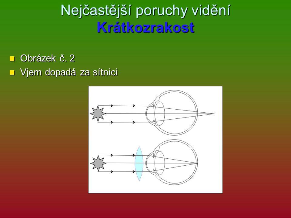 Nejčastější poruchy vidění Krátkozrakost