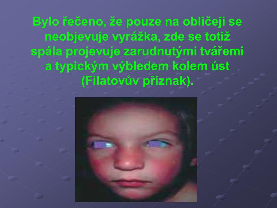 Bylo řečeno, že pouze na obličeji se neobjevuje vyrážka, zde se totiž spála projevuje zarudnutými tvářemi a typickým výbledem kolem úst (Filatovův příznak).