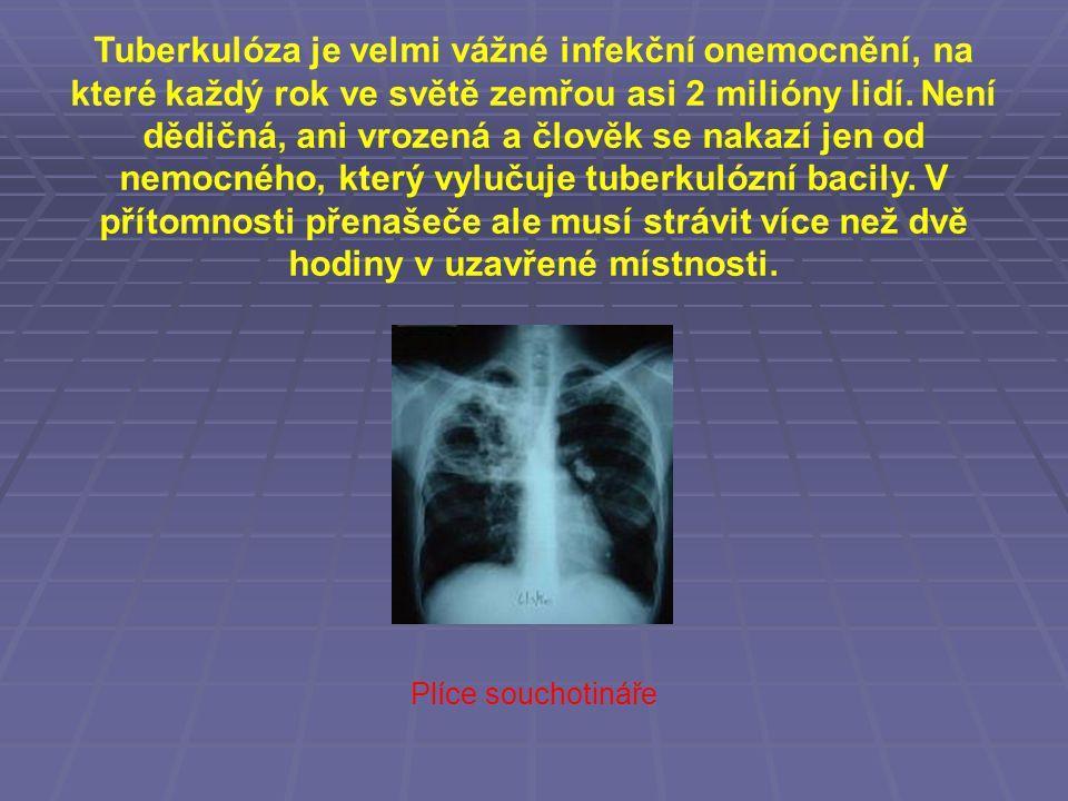 Tuberkulóza je velmi vážné infekční onemocnění, na které každý rok ve světě zemřou asi 2 milióny lidí. Není dědičná, ani vrozená a člověk se nakazí jen od nemocného, který vylučuje tuberkulózní bacily. V přítomnosti přenašeče ale musí strávit více než dvě hodiny v uzavřené místnosti.