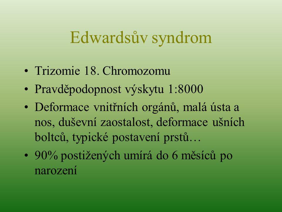 Edwardsův syndrom Trizomie 18. Chromozomu