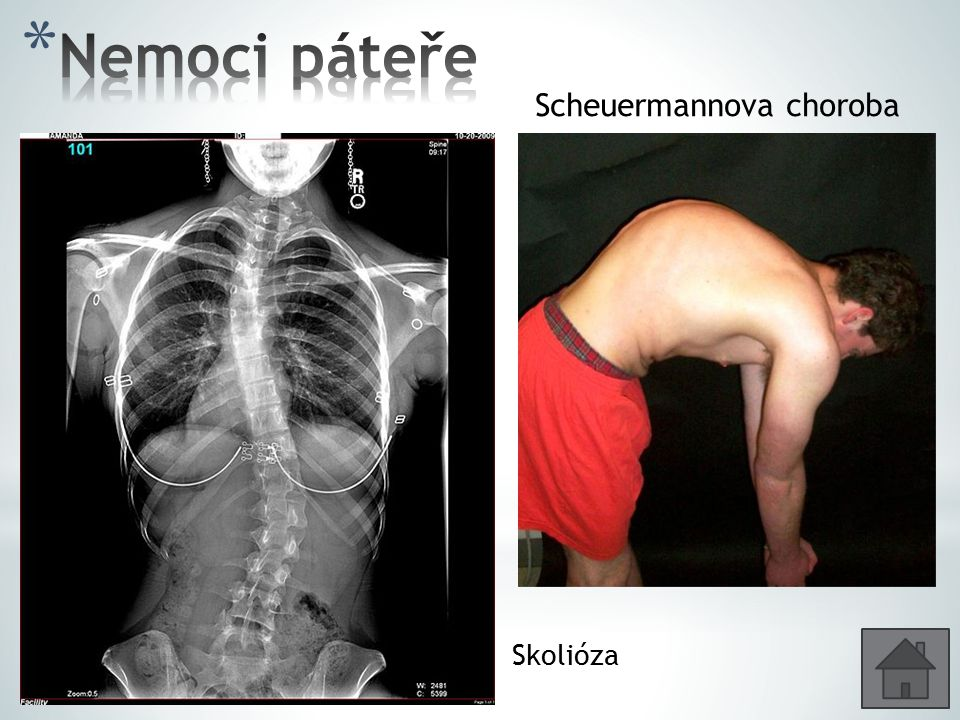 Nemoci páteře Scheuermannova choroba Skolióza