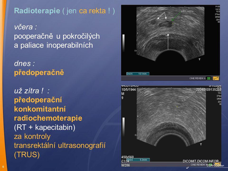 Radioterapie ( jen ca rekta ! )