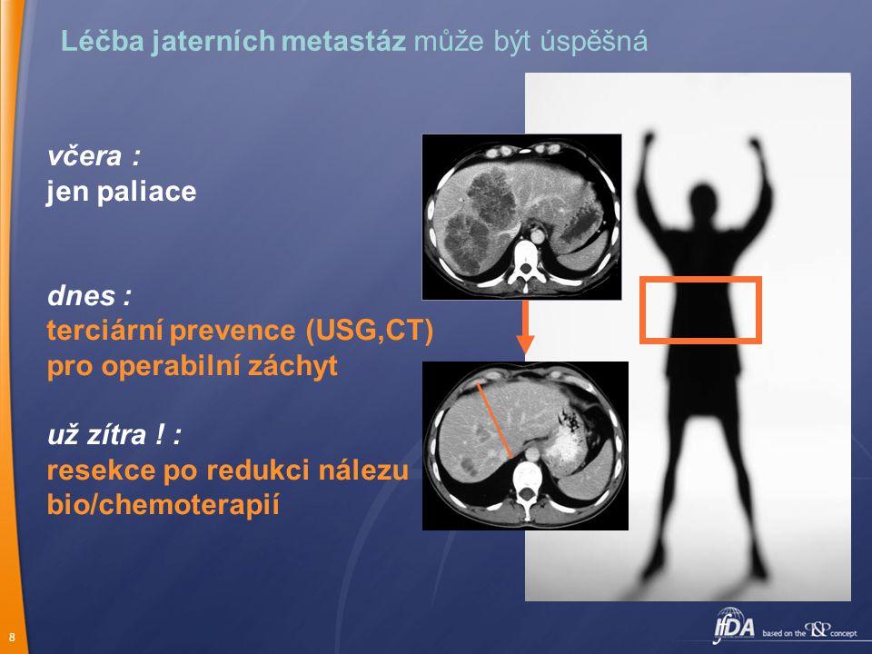 Léčba jaterních metastáz může být úspěšná