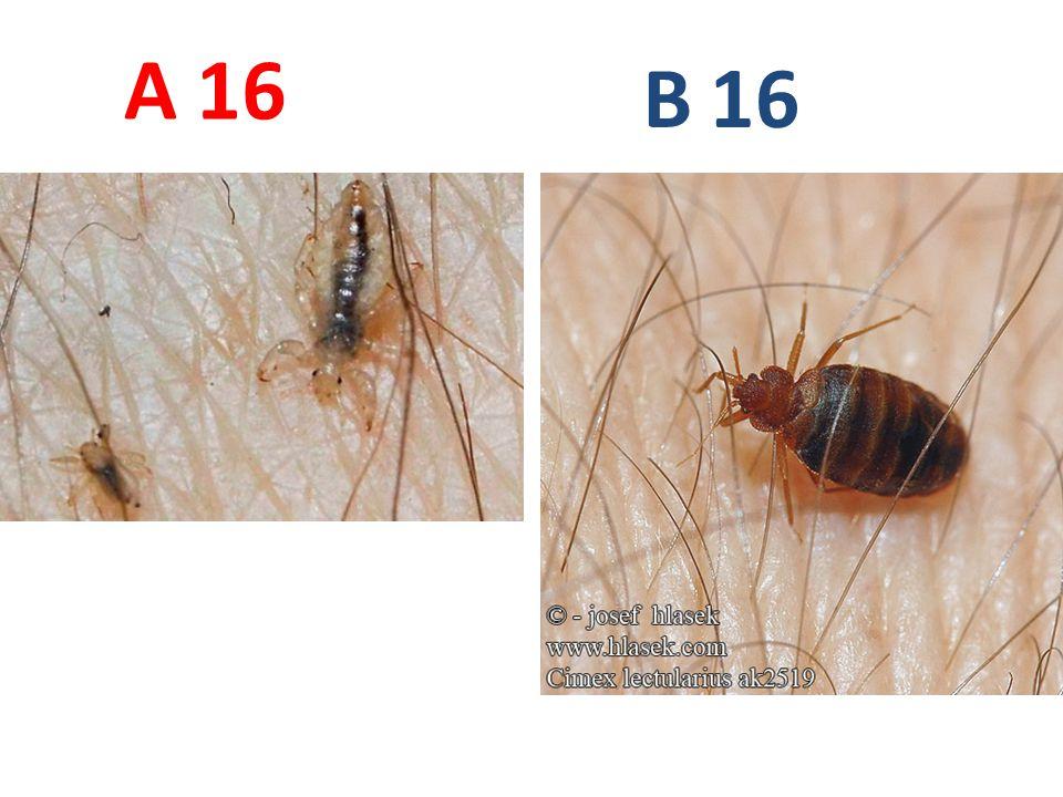 A B 16 A16: veš dětská, vši, http://bugguide.net/node/view/352269