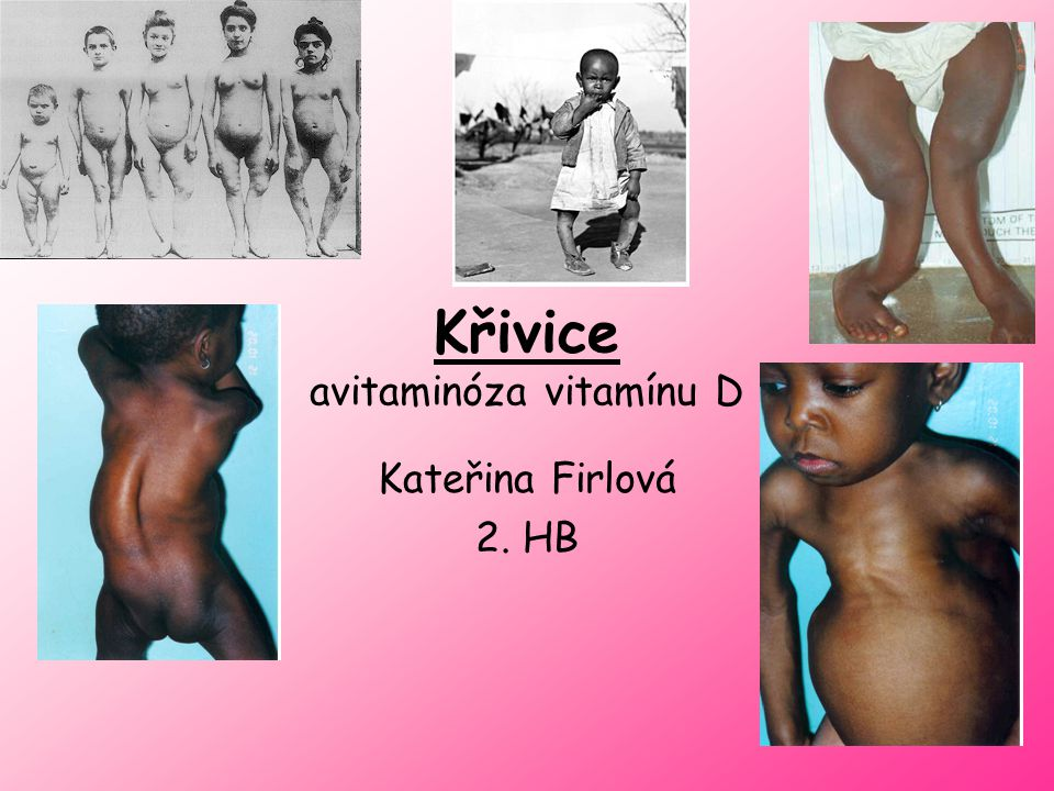Křivice avitaminóza vitamínu D