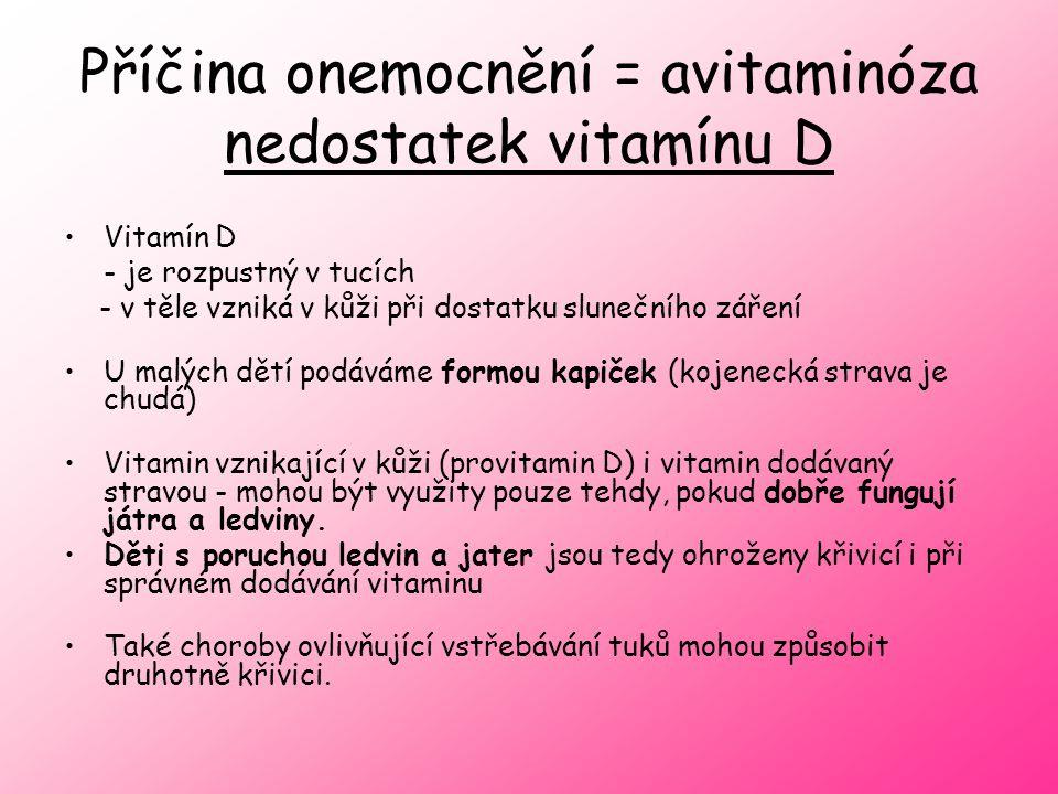 Příčina onemocnění = avitaminóza nedostatek vitamínu D