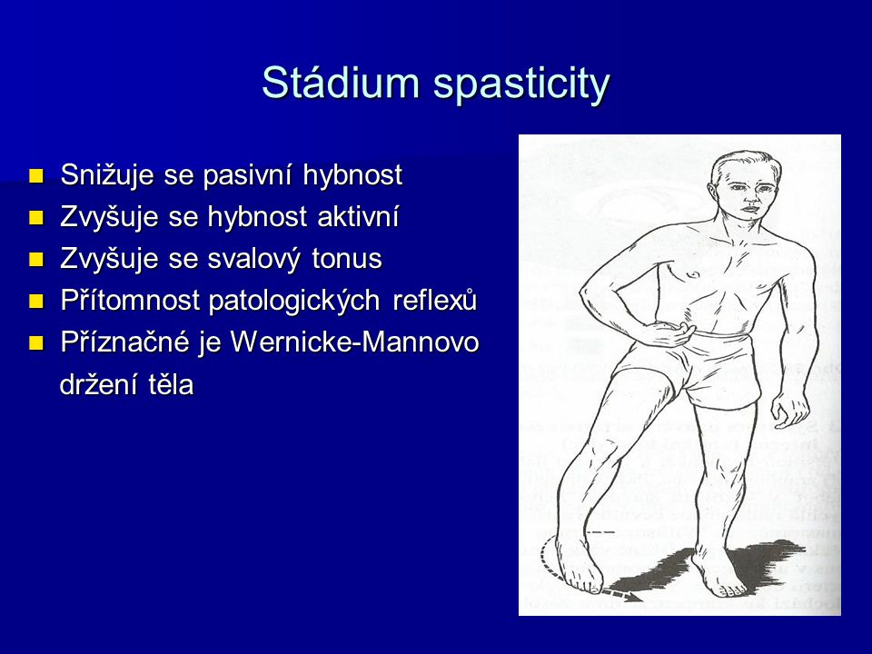Stádium spasticity Snižuje se pasivní hybnost