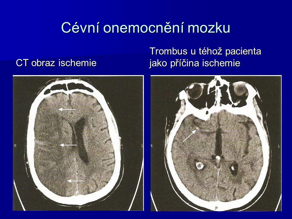 Cévní onemocnění mozku