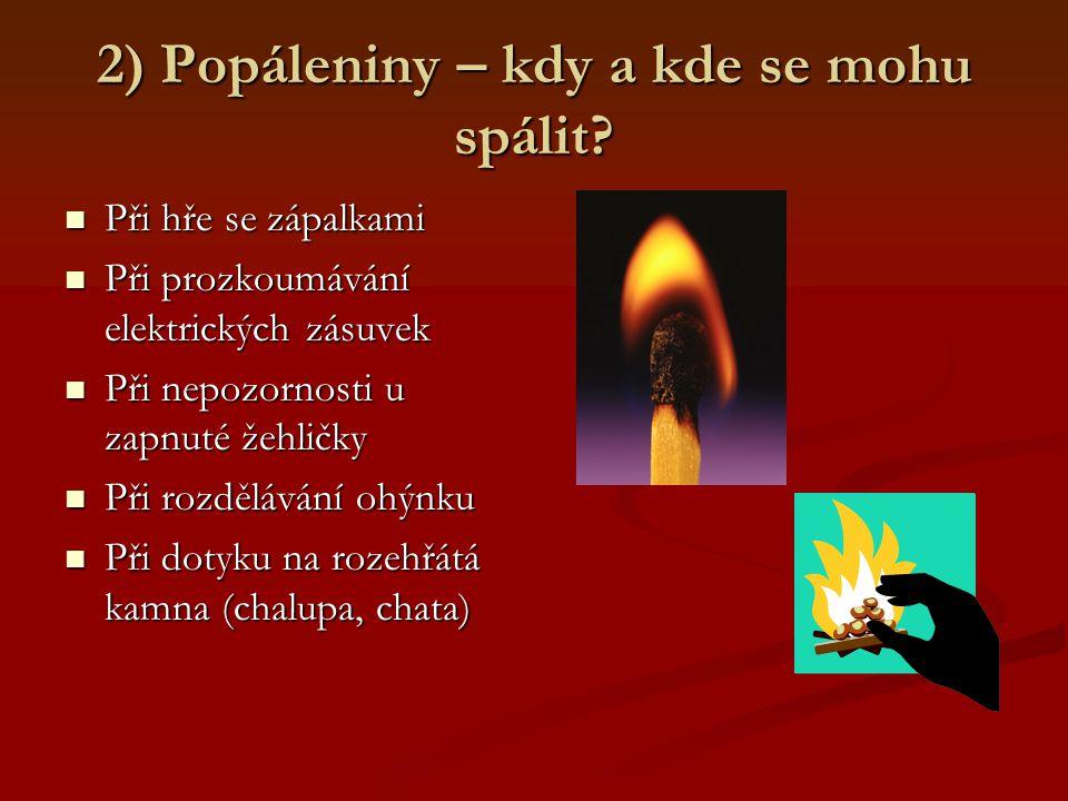 2) Popáleniny – kdy a kde se mohu spálit