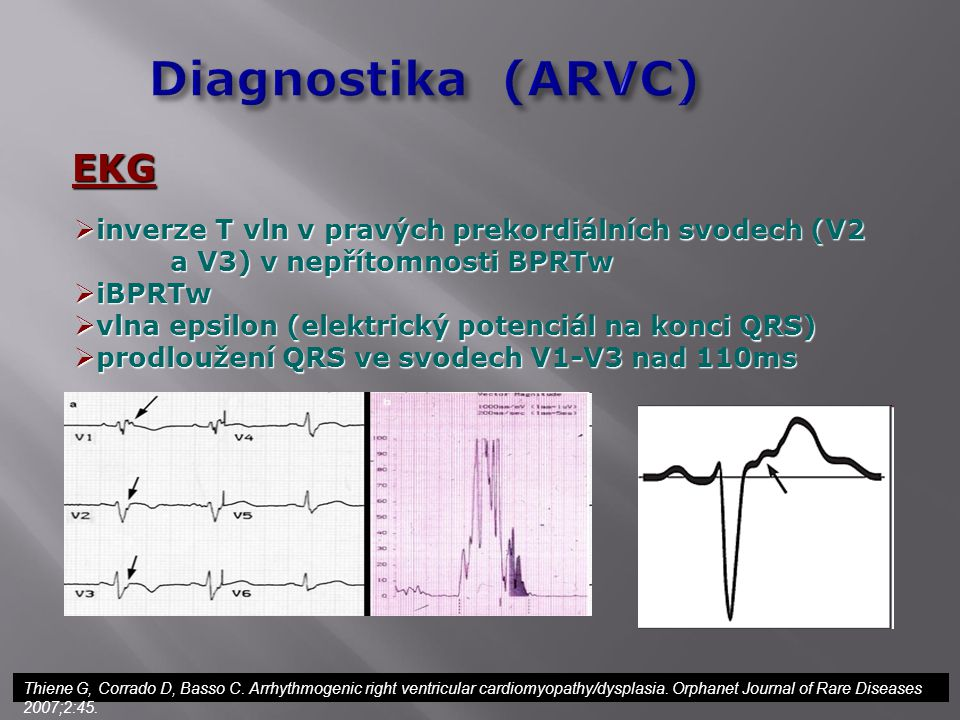 Diagnostika (ARVC) EKG