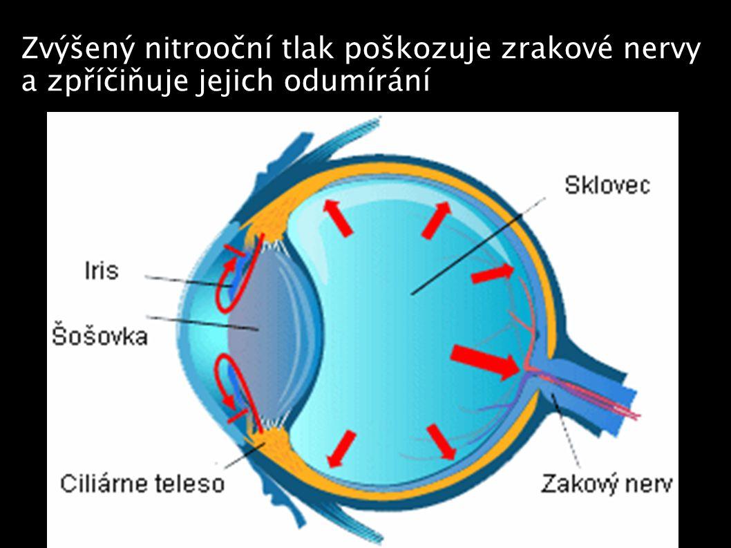 Zvýšený nitrooční tlak poškozuje zrakové nervy a zpříčiňuje jejich odumírání