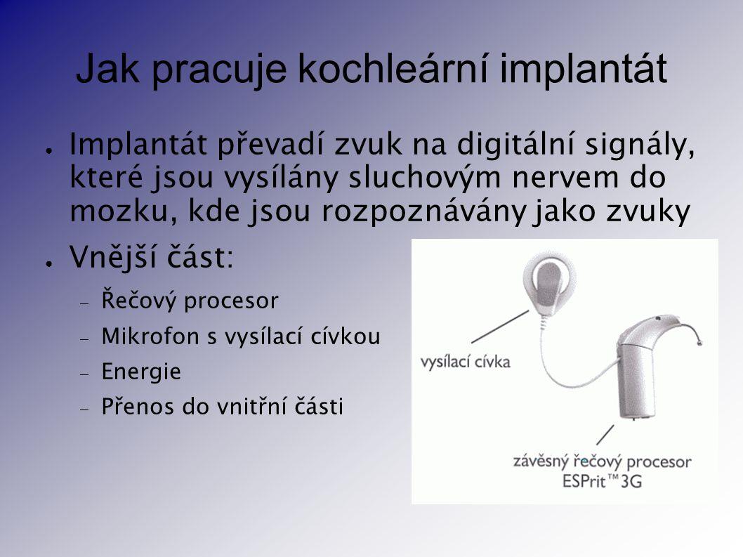 Jak pracuje kochleární implantát