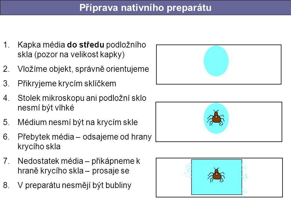Příprava nativního preparátu