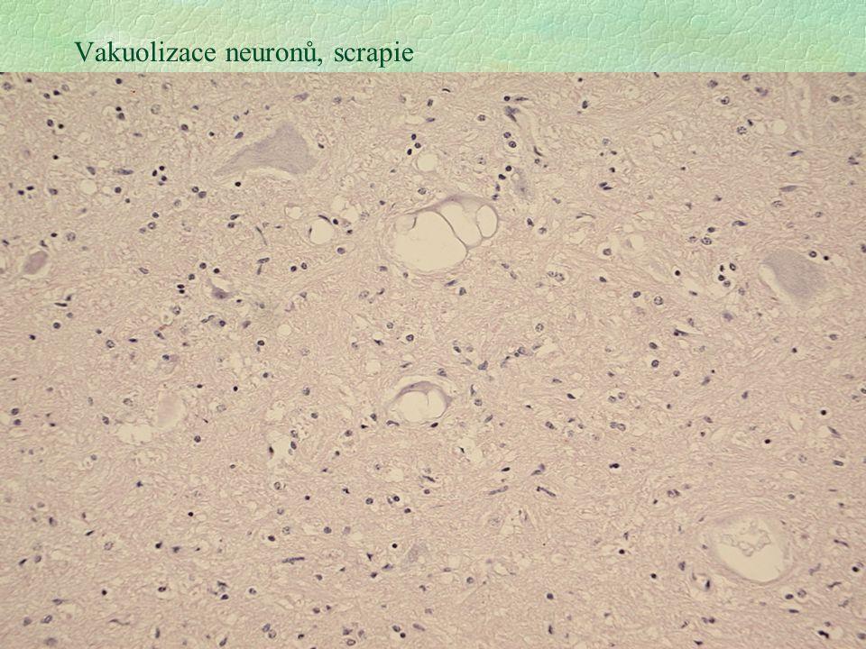 Vakuolizace neuronů, scrapie