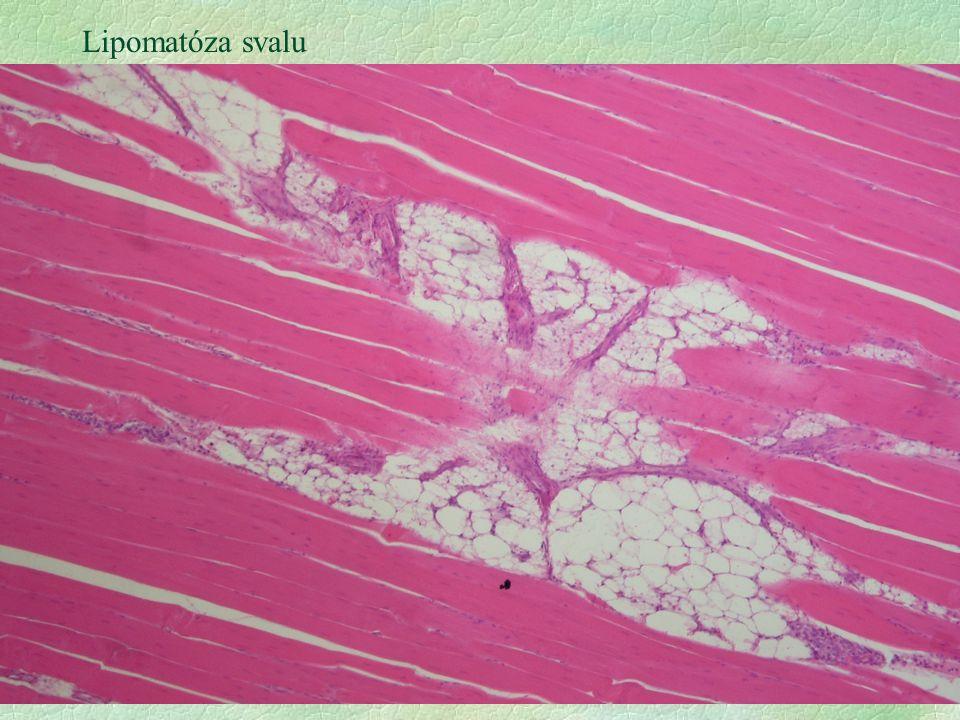 Lipomatóza svalu