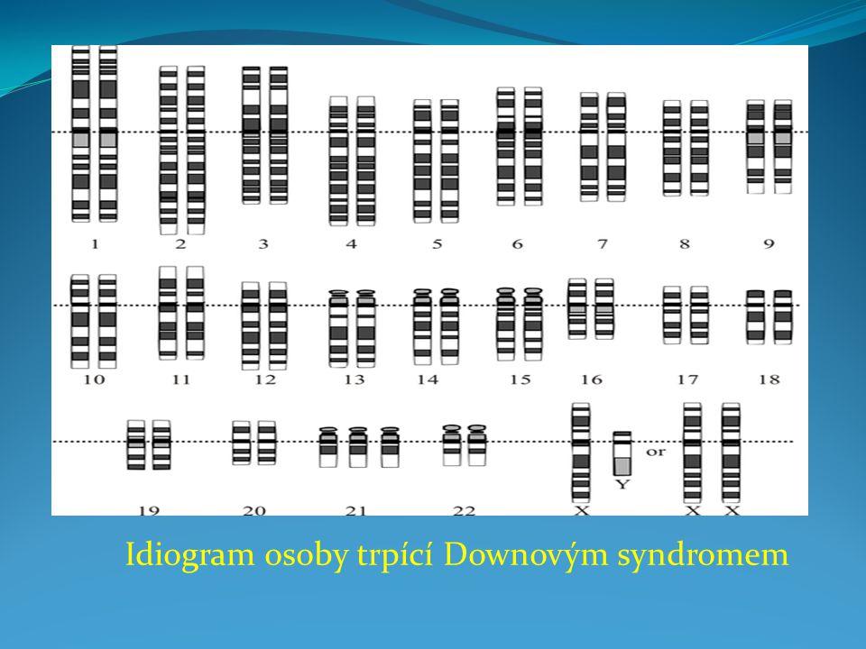 Idiogram osoby trpící Downovým syndromem
