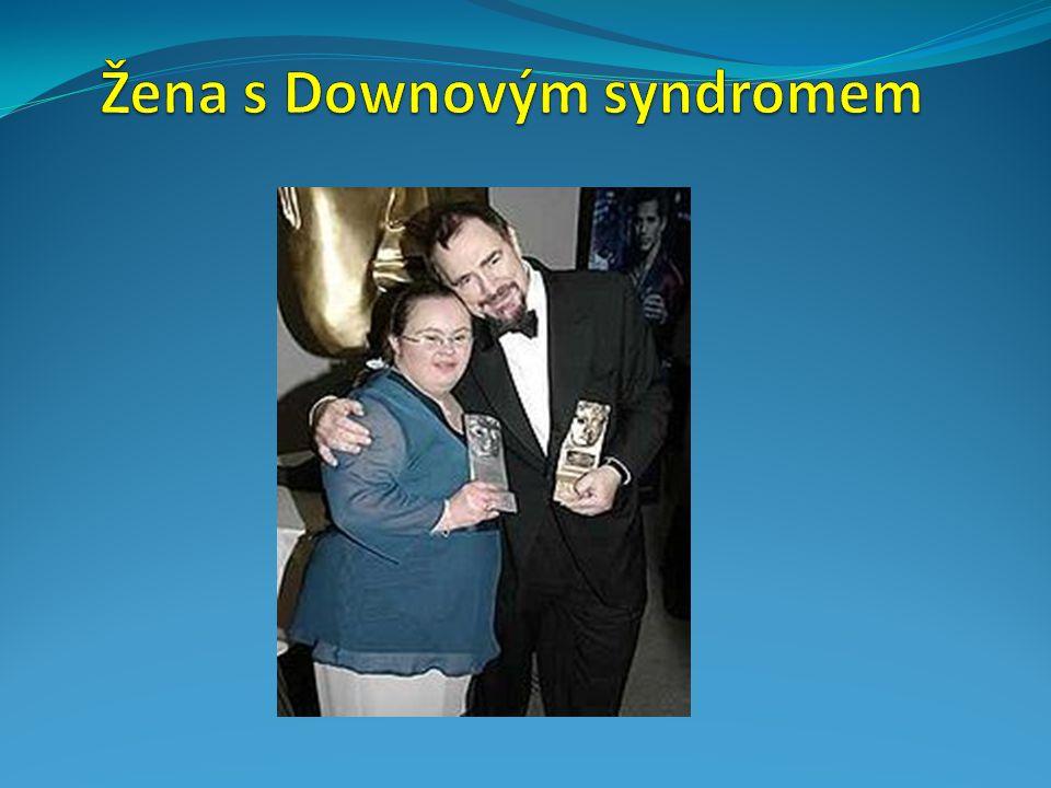 Žena s Downovým syndromem