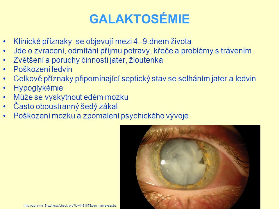 GALAKTOSÉMIE Klinické příznaky se objevují mezi 4.-9.dnem života