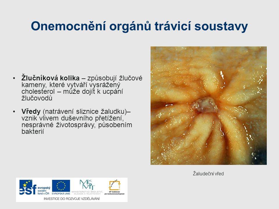 Onemocnění orgánů trávicí soustavy