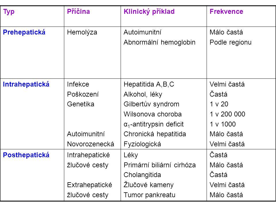 Typ Příčina. Klinický příklad. Frekvence. Prehepatická. Hemolýza. Autoimunitní. Abnormální hemoglobin.