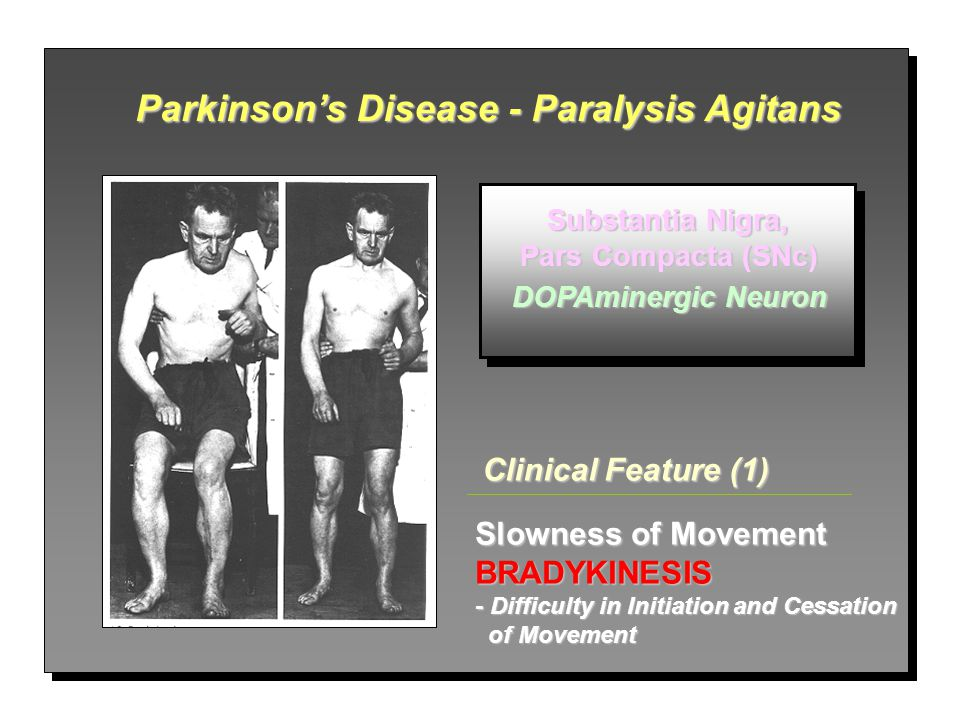 Parkinson's Disease - Paralysis Agitans
