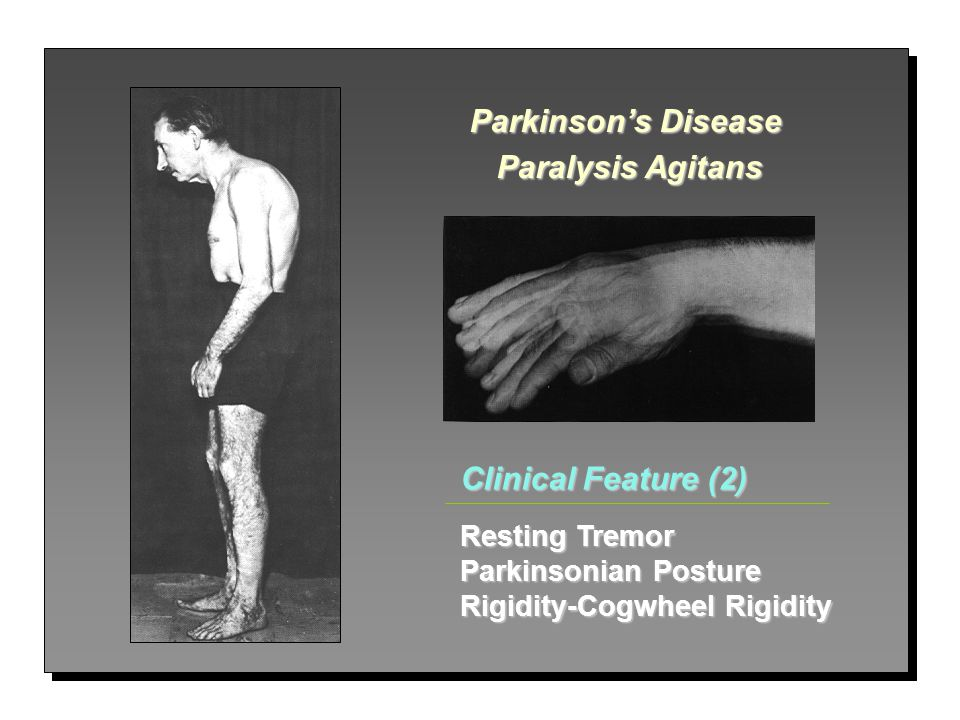 Parkinson's Disease Paralysis Agitans