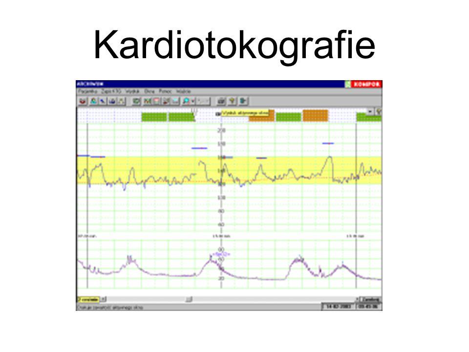 Kardiotokografie