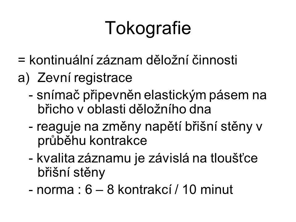 Tokografie = kontinuální záznam děložní činnosti Zevní registrace