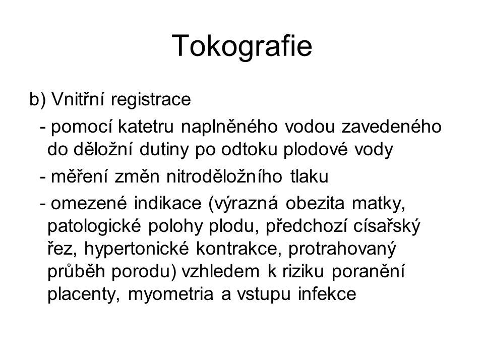 Tokografie b) Vnitřní registrace