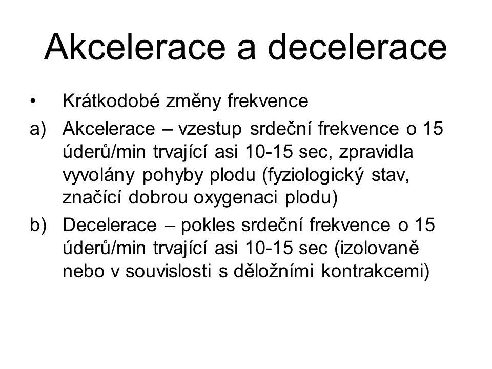 Akcelerace a decelerace