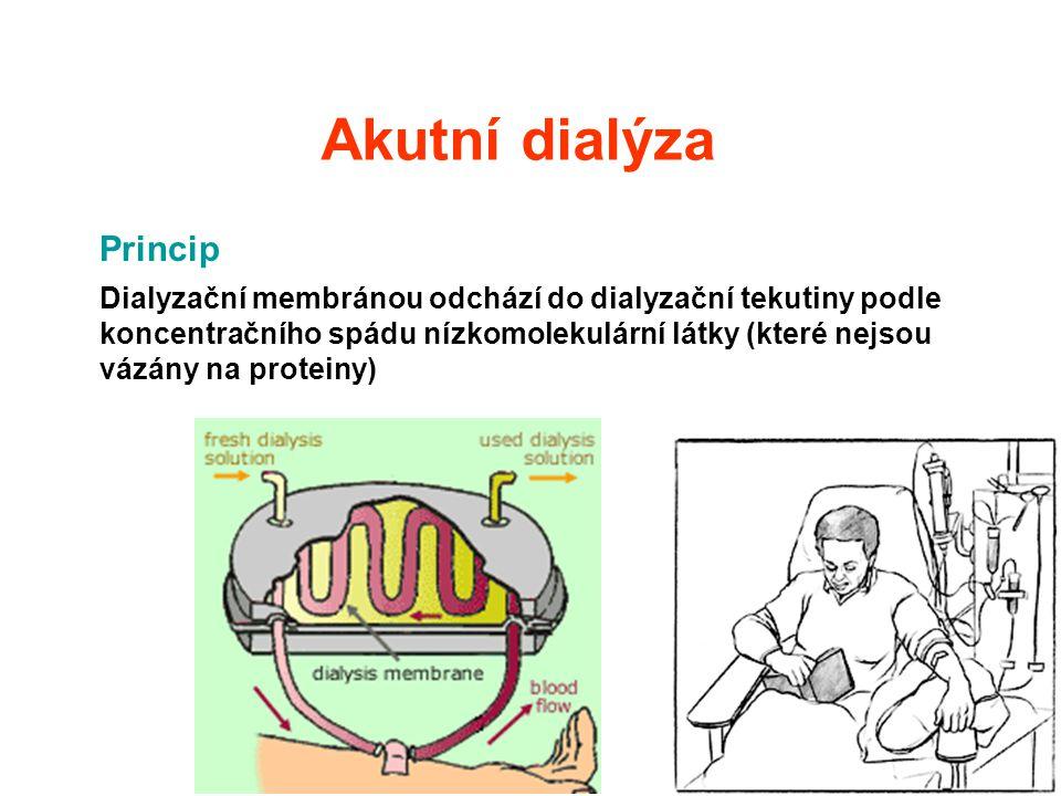 Akutní dialýza Princip