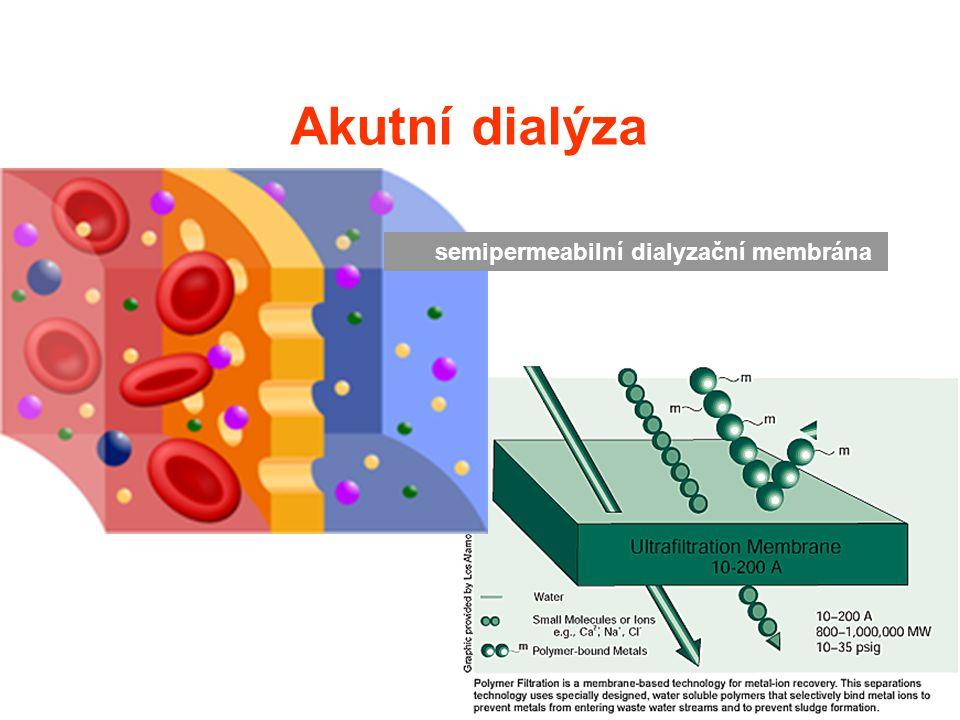 Akutní dialýza semipermeabilní dialyzační membrána