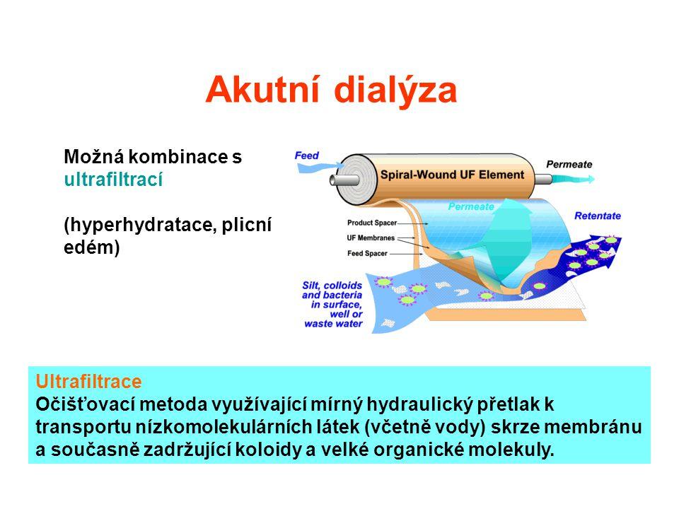 Akutní dialýza Možná kombinace s ultrafiltrací