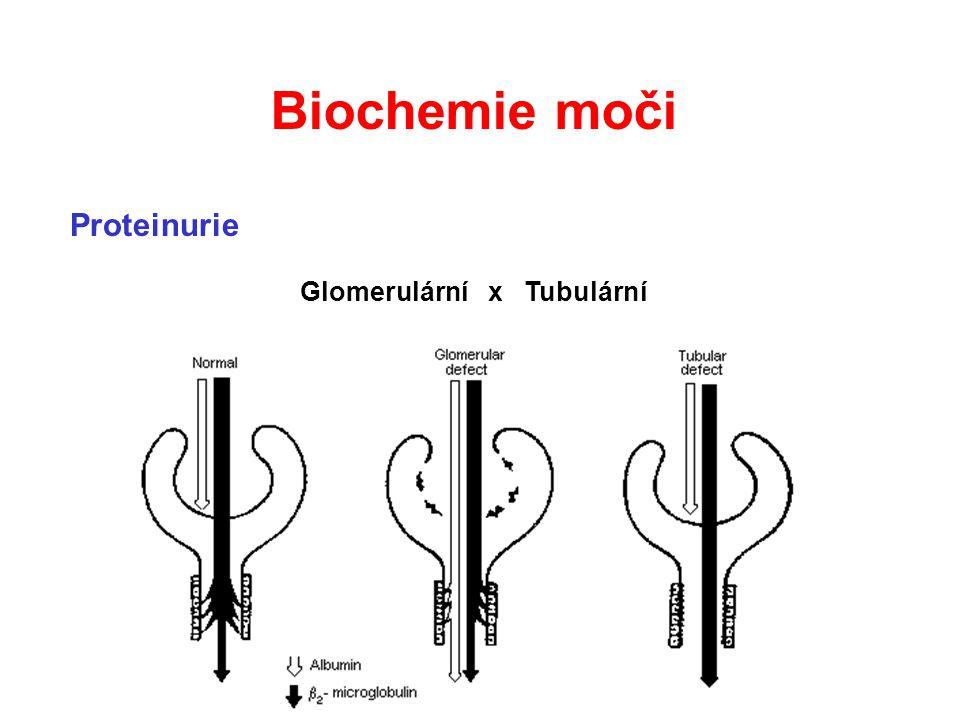 Biochemie moči Proteinurie Glomerulární x Tubulární