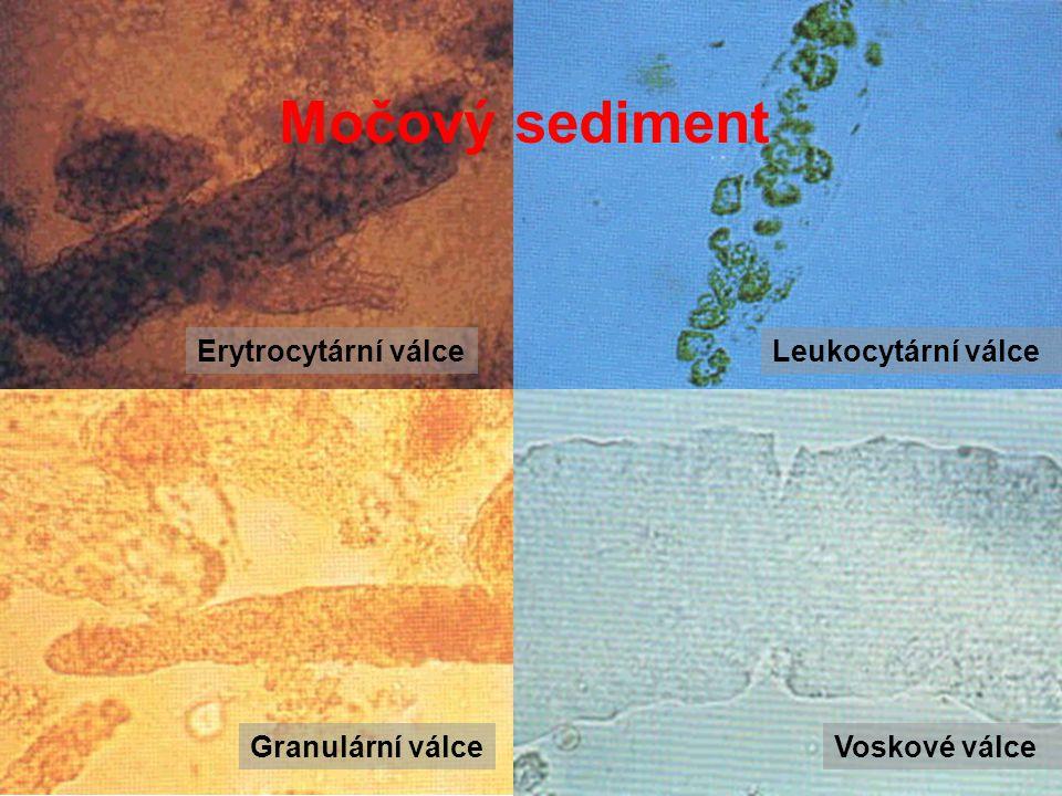 Močový sediment Erytrocytární válce Leukocytární válce