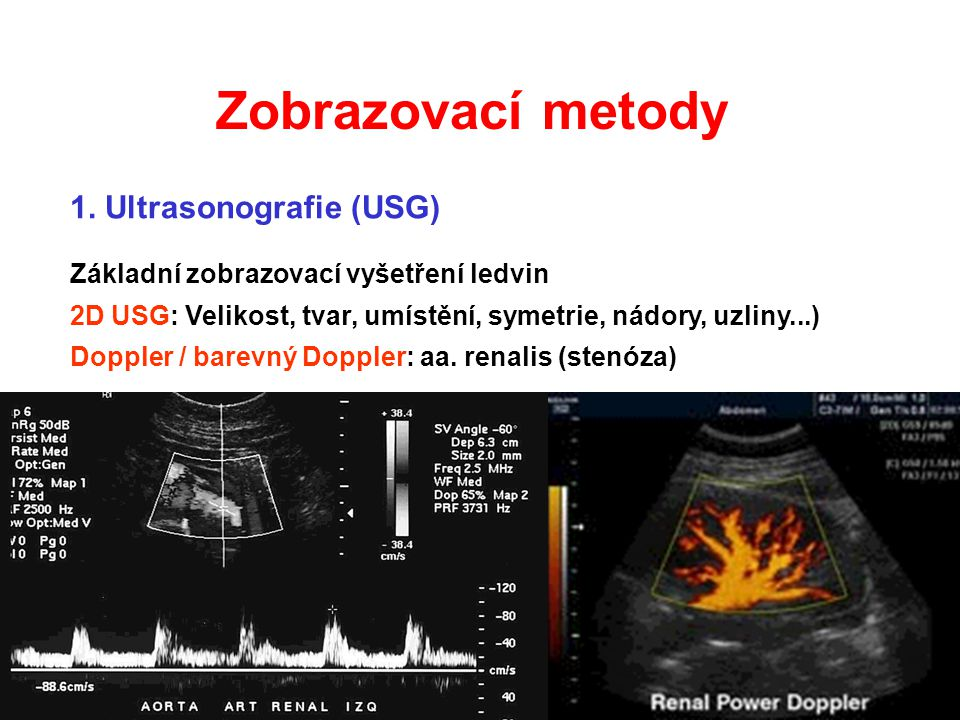 Zobrazovací metody 1. Ultrasonografie (USG)