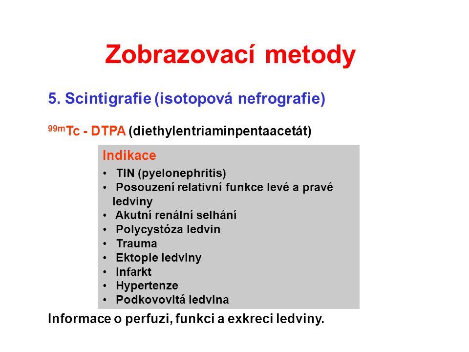 Zobrazovací metody 5. Scintigrafie (isotopová nefrografie)